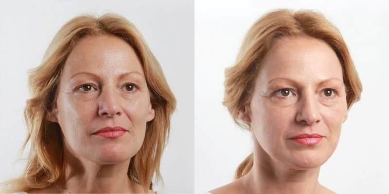 thread lift lower face before after