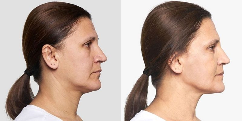 thread lift lower face melbourne before after photo