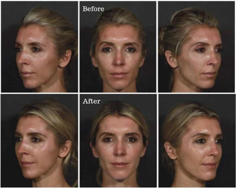 before after collagen stimulating injections