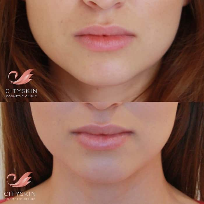 facial slimming before after