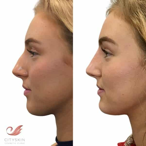 Nose dermal filler with a Doctor | Non-surgical rhinoplasty
