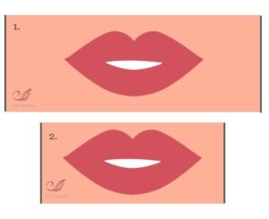 lips larger without filler