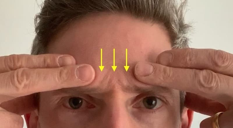 flat heavy forehead after anti-wrinkle treatment
