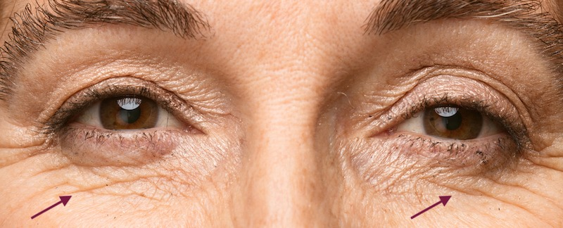 under eye lines after anti-wrinkle treatment