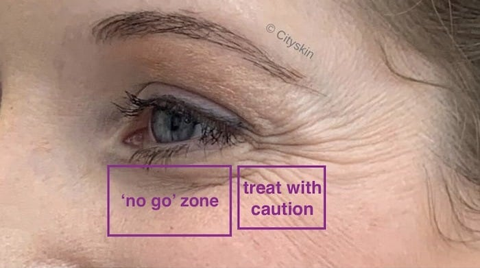 where to treat under eye lines